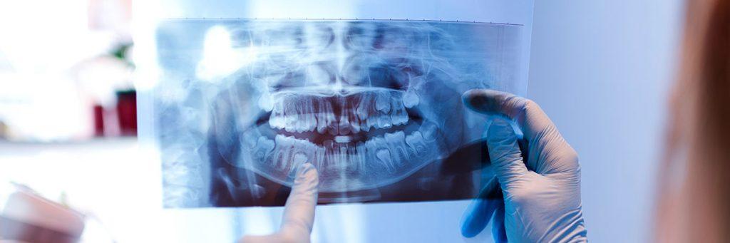 Fotografía de radiografía panorámica dental