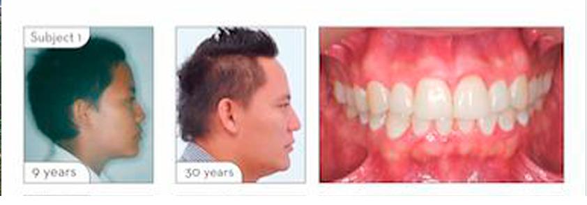 Imagen del estudio odontológico realizado por investigadores de la Universidad CES